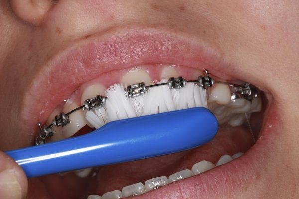 tandenborstel2