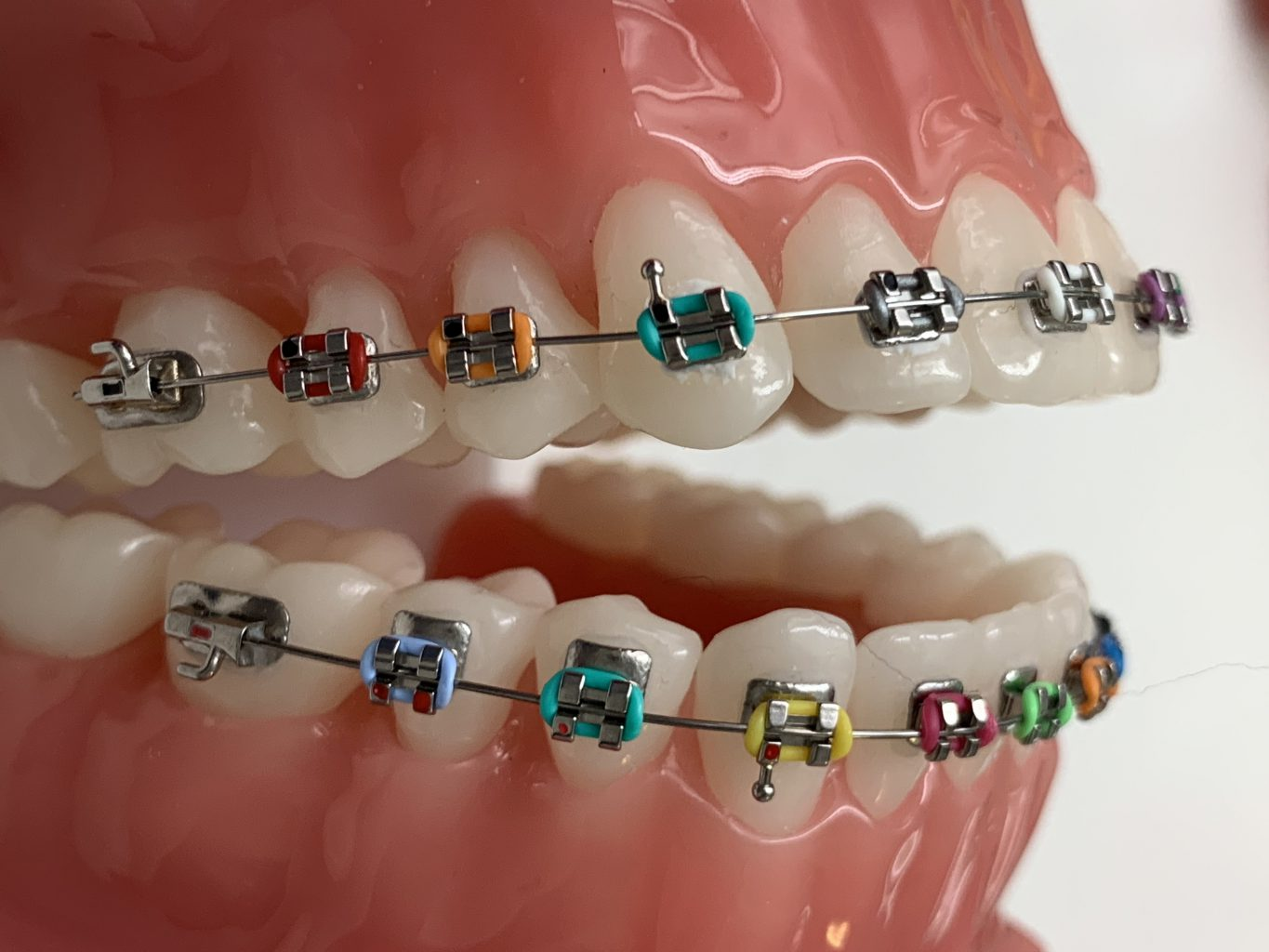 American Orthodontics Mini Master brackets