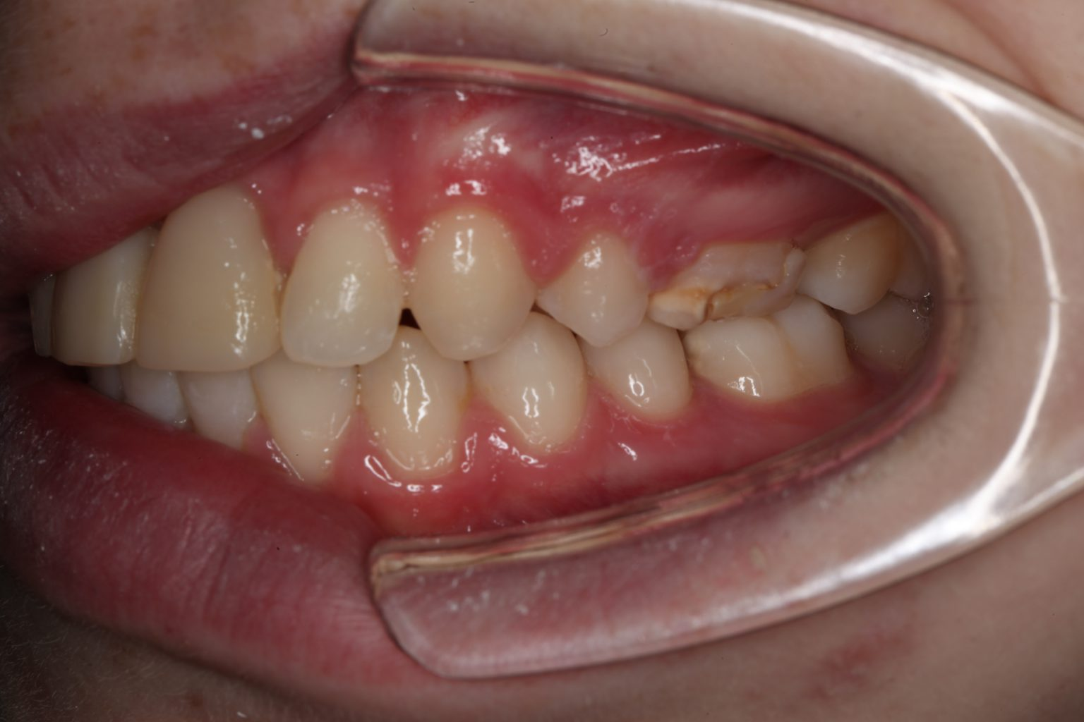 Linkeraanzicht met ge-autotransplanteerde premolaren