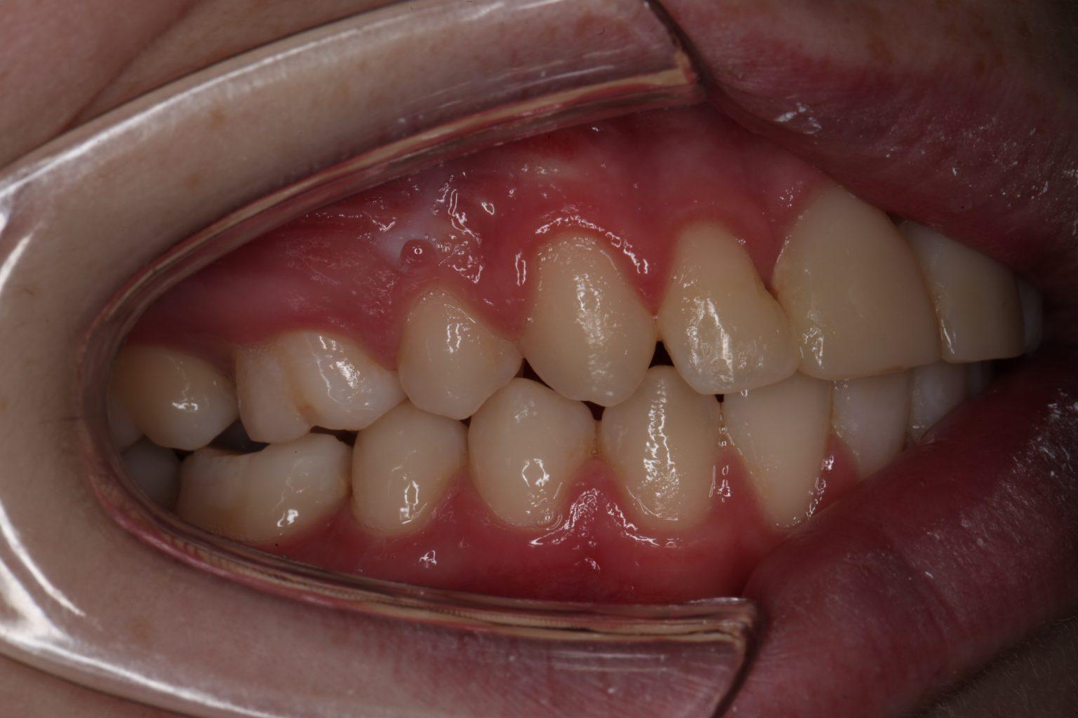 Rechteraanzicht met ge-autotransplanteerde premolaren