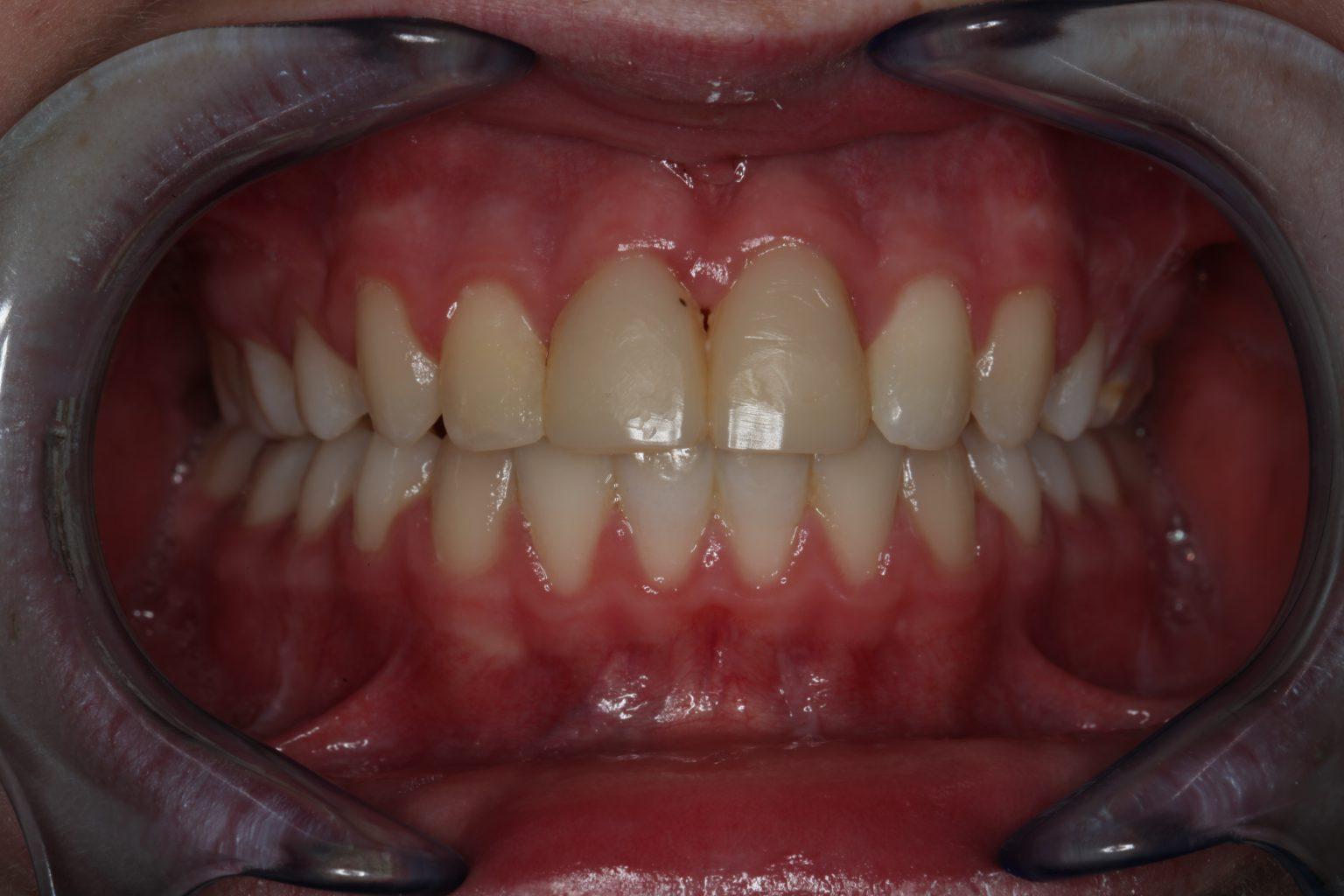 Vooraanzicht met ge-autotransplanteerde premolaren